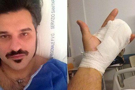 Grave incidente per Mauro Marin: l'ex gieffino perde due dita!